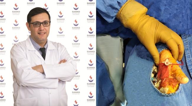 SANKO Üniversitesi Hastanesi'nde Başparmaktan Anjiyo İşlemi